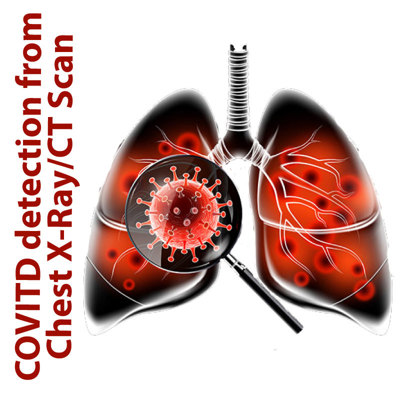 COVID-detection-from-chest-X-Ra